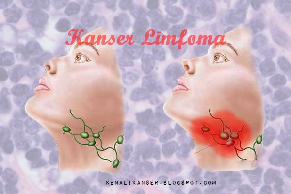kanser limfoma lymphoma