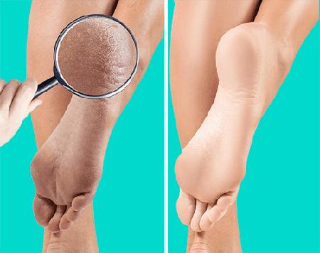 بهذه الطريقة يمكنك التخلص من تشقق القدمين بكل سهولة
