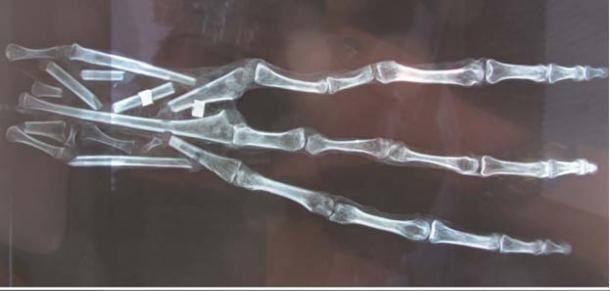 Los rayos X revelaron que no es falsa