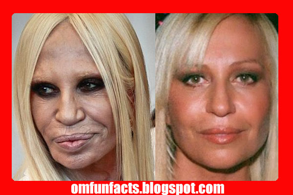 Donatella Versace befor & after