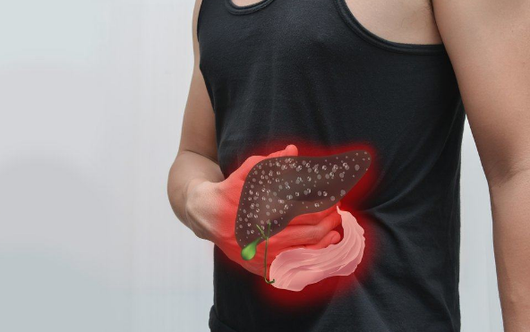 Merek Obat Hepatitis A Resep Dokter yg Bagus