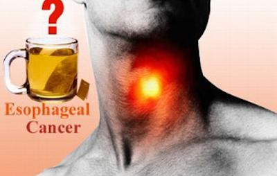 Obat Radang Tenggorokan Panas Tinggi Terbakar, Gatal, Dan Perih yang Ampuh dan Bagus