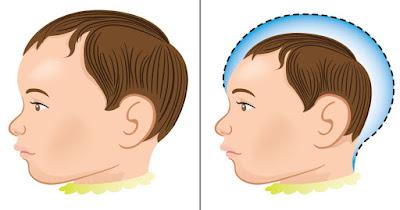 Tem Na Web - Mães de bebês com microcefalia vivem novos desafios