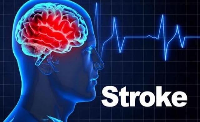 Solusi pengobatan stroke sudah 10 th dengan Konsep Karnus
