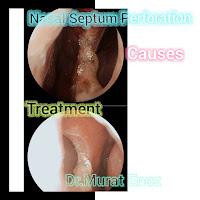 Definition of Nasal Septum Perforation,Treatment of Nasal Septum Perforation,Nasal Septum Perforation,Classifications of Nasal Septum Perforation,Nasal Septum Perforation Causes,
