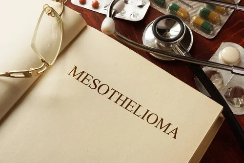 New York Mesothelioma Attorneys Complete List | New York Mesothelioma Lawyers