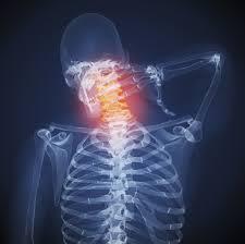 Cara untuk Mengatasi Leher Kaku