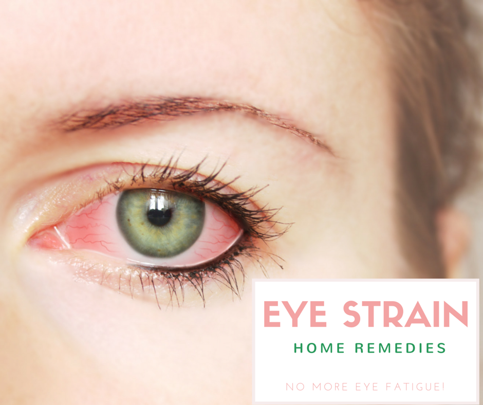 eye strain home remedies