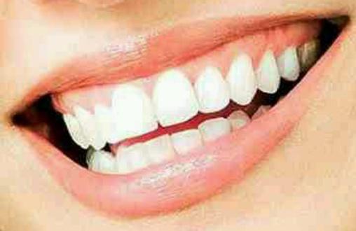 Siapa sih yang tidak ingin memiliki gigi putih 5b4fbf3a86
