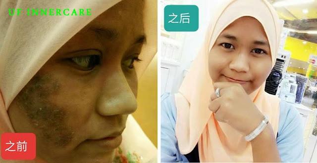 UF innercare 皮肤见证 马来人