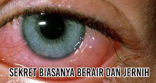 Benar gak sih melihat orang sakit mata bisa menular?