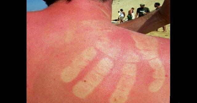 Allergie au soleil: Causes et remèdes
