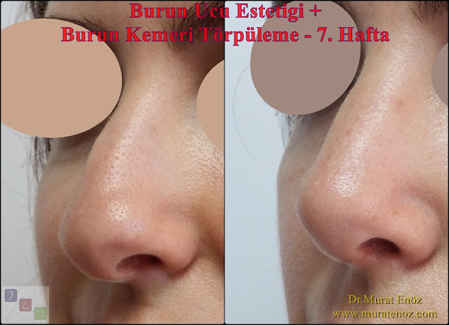 Nose tip plasty Istanbul - Nose tip lifting Turkey - Nasal hump removal - Nasal hump reduction - Rhinoplasty without bone breaking in Istanbul - Nose job without breaking bone - Nasal aesthetic surgery without breaking the bone in Istanbul - Rhinoplasty without breaking nose bone in Turkey