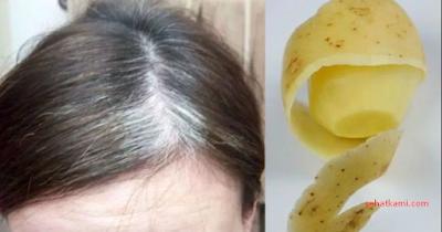 Cara Menghilangkan Uban dengan kulit kentang