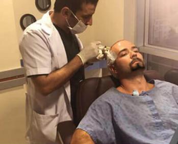 مريض خلال عملية زرع الشعر