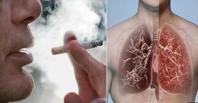 This is What Happens to Your Lungs After Smoking 60 Cigarettes