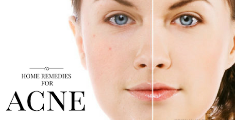 see more how to get rid of pimples