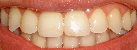 teeth after braces and crown lengthening albuquerque