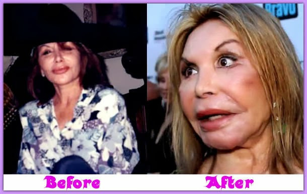 Elsa Patton Plastic Surgery Gone Wrong Before And After