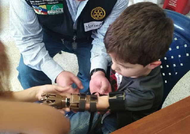 Club Rotario Meridanas y el DIF Yucatán entregarán 150 prótesis de mano