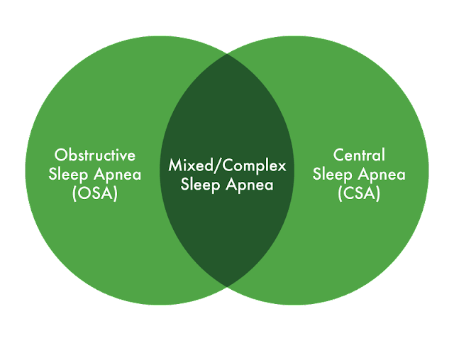 Understanding Mixed Sleep Apnea – Symptoms, Causes and Treatment Options