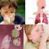 Obat Yang Ampuh Untuk Menyembuhkan Infeksi Saluran Pernafasan Secara Alami