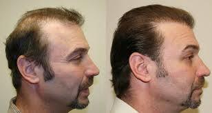 saç ekimi öncesi sonrası fotolar