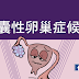 多囊性卵巢症候群(懶人包)