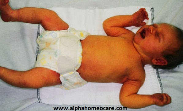 Neonatal jaundice and homeopathy treatment