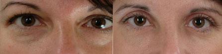 Poches malaires avant & après