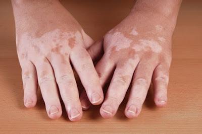 Obat Vitiligo Yang Sudah Terbukti
