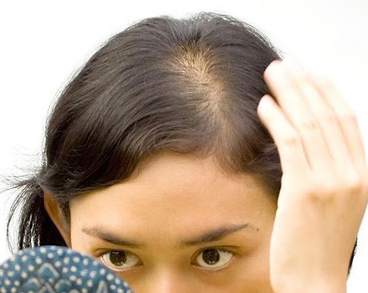 10 Home Remedies for Hair Fall