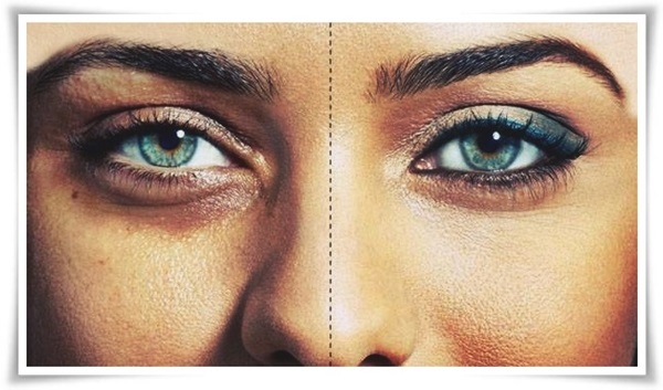 3 Ways to Remove Panda Eyes Naturally