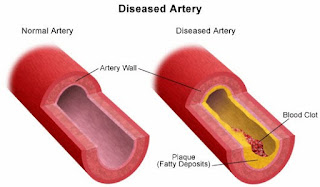 3.Protects Artery Walls From Damages.