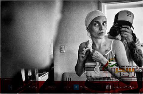 سرطان الثدي الشرس