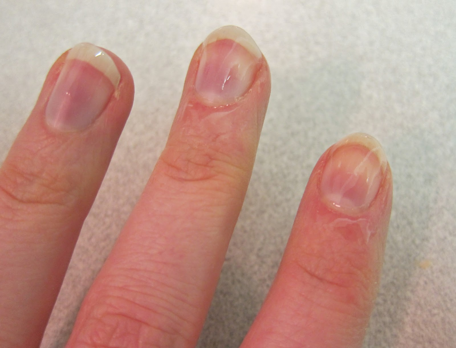 Anemia Fingernails Bing Images