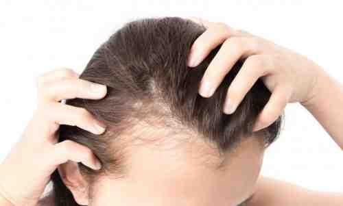 اسباب تساقط الشعر عند النساء وعلاجه بسرعة