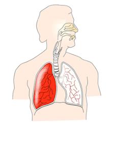 Penyakit ISPA
