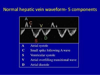 Transthoracic echo hepatic Doppler
