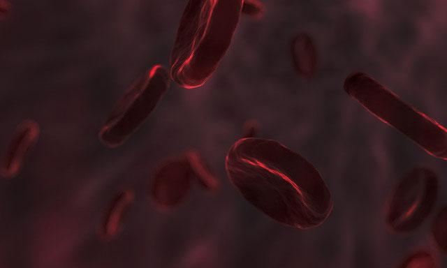 فقر الدم الخطير