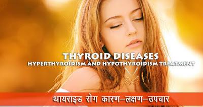 थायराइड रोग उपचार, Thyroid Disease Treatment in Hindi, थायराइड दूर करने के अचूक आयुर्वेदिक उपाय, ayurvedic treatment for thyroid, थायराइड रोग, थायराइड के लक्षण, thyroid ke lakshan, Common Symptoms Of Thyroid, thyroid ka ayurvedic upchar, थायराइड की बीमारी का आयुर्वेदिक इलाज