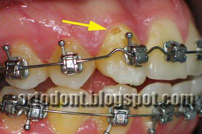 На фото зуба рядом с основанием брекета виден очаг кариозного поражения
