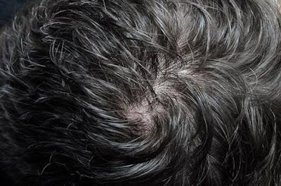 Graines de fenugrec pour épaissir les cheveux fins