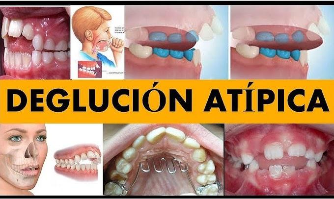 WEBINAR: Deglución Atípica, un problema recurrente en los niños - Dr. Julio Gonzales