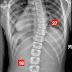 脊椎側彎矯正案例28~ 10次  側彎度數降至20度以內