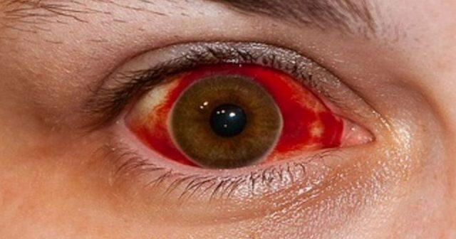 que pasa cuando se rompe un vaso sanguineo del ojo