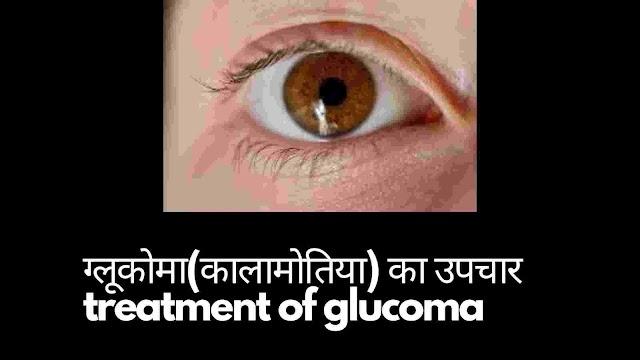 ग्लूकोमा (कालामोतिया) के लक्षण व उपचार - Glaucoma symtoms and treatment in hindi