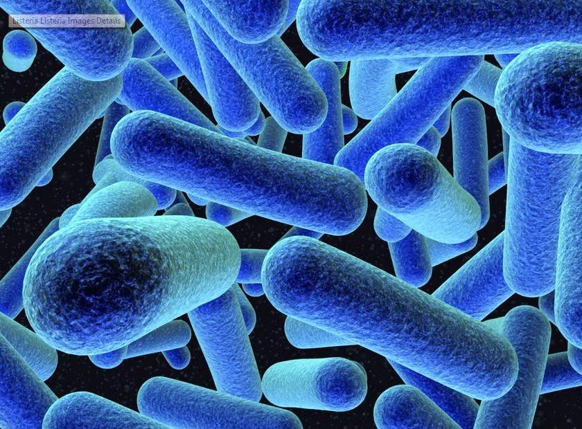 what is listeria  why sabra recall hummus  hitech talk