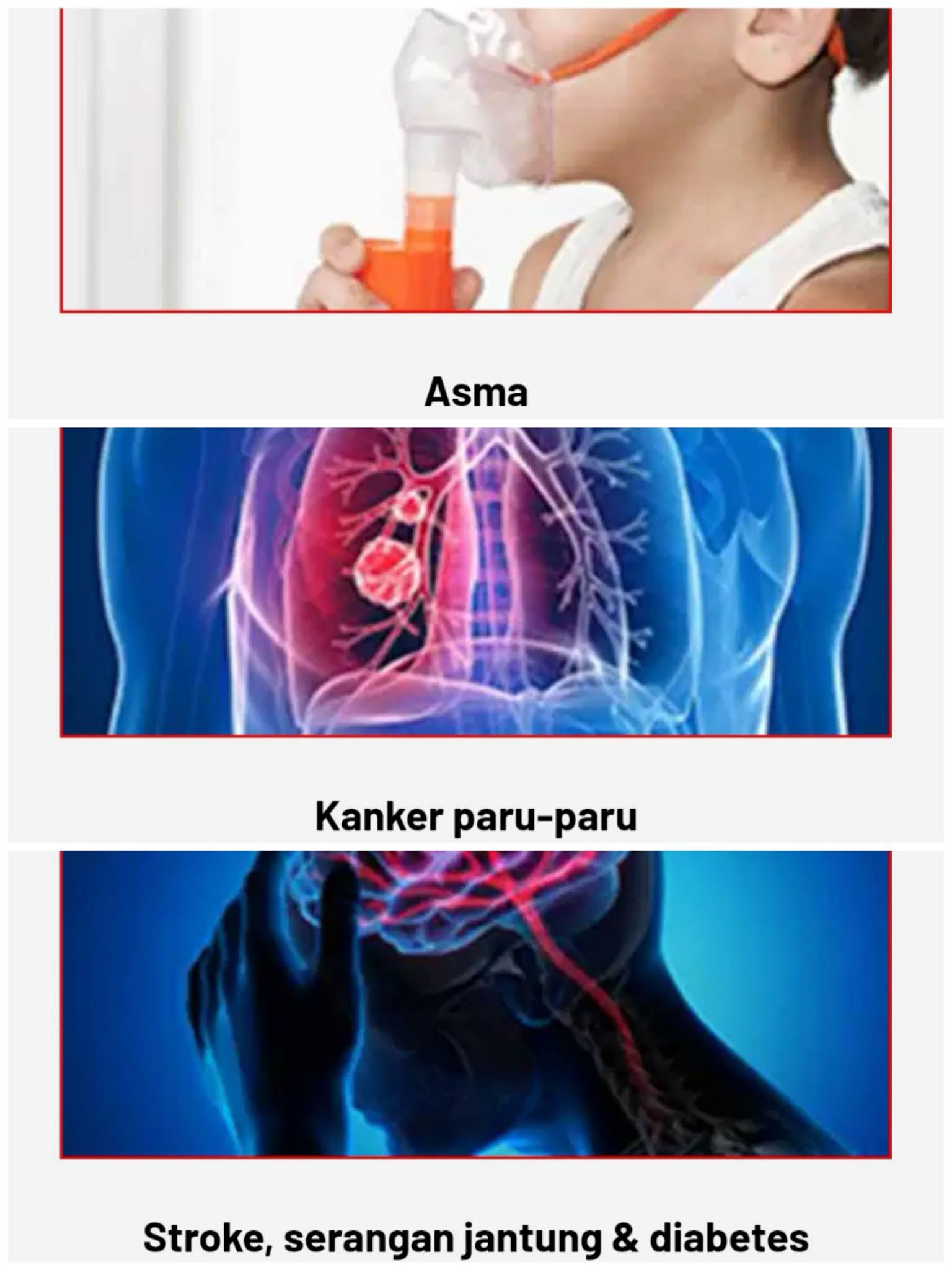 Gangguan Kesehatan Komplikasi Paru - Paru