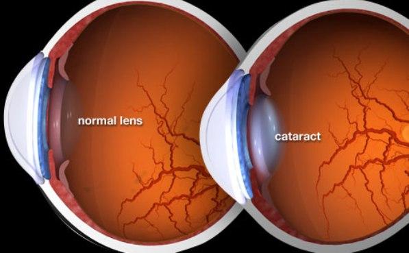Illustration Of Cataract
